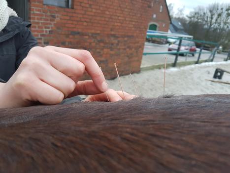Dry Needling am Übergang Lenden-/Glutealmuskulatur